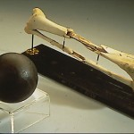 During the Battle of Gettysburg, on July 2, 1863, Union General Daniel Sickles's lower right leg was shattered by a cannonball, such as the one in the image. After his leg (above) was amputated, Sickles sent it to the Army Medical Museum in Washington, where it was preserved. Sickles often visited his leg on the anniversary of the amputation. (National Museum of Health and Medicine)